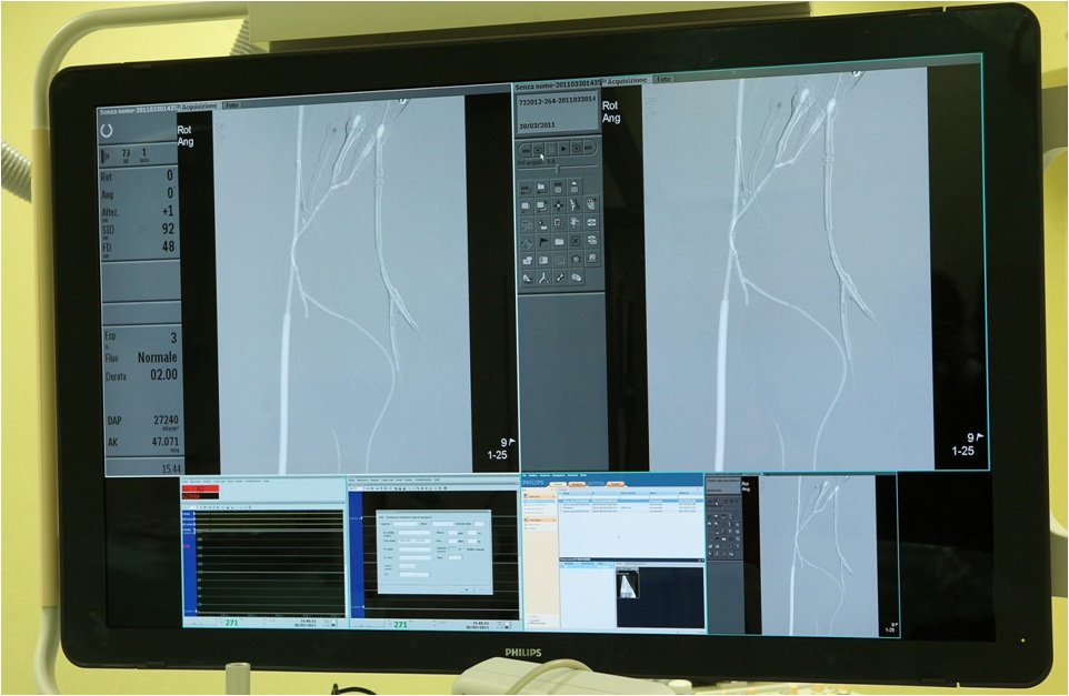 Angiodroid CO2 injector and Philips Medical Systems angiographic devices integration